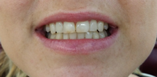 PHILIPS Zoom! Whitening Case 1 Before