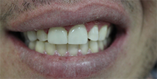 Zoom! Whitening & Porcelain Veneers After