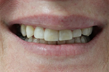 Direct Veneers Case 1 After