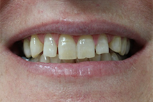 Direct Veneers Case 1 Before