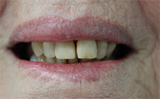 Direct Veneers Case 2 After