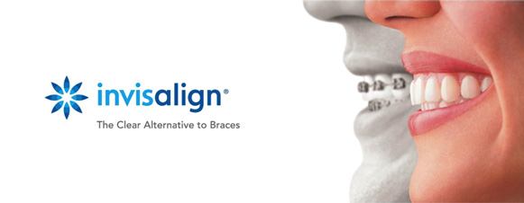 Invisalign - The clear alternative to braces
