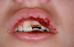 Dental Trauma Care