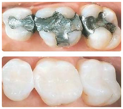 White Fillings