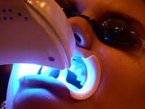PHILIPS ZOOM! WHITENING (only $750)