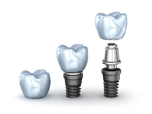 Special offer - Implant & Crown