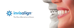 Special offer - Invisalign